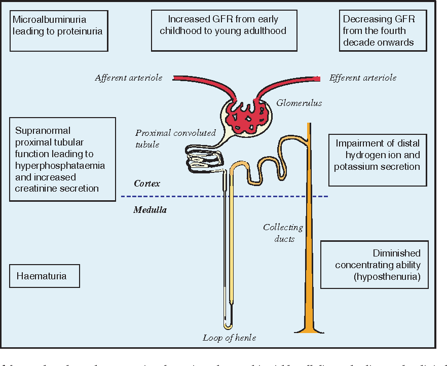 pathophysiology of sickle cell anemia