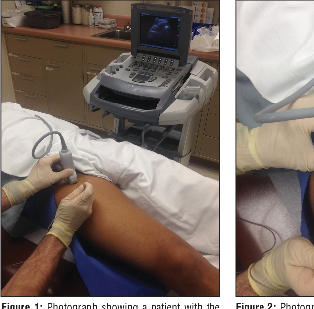 Figure 1 from Accuracy of Ultrasound-Guided Intra-articular