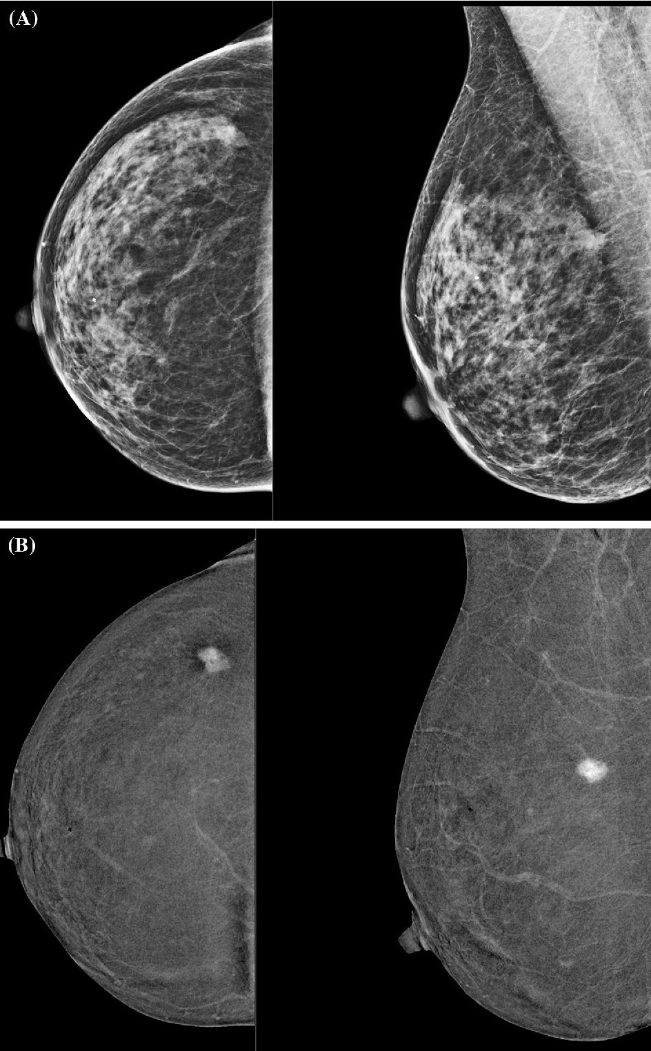 Figure 1 From Contrast Enhanced Digital Mammography In The