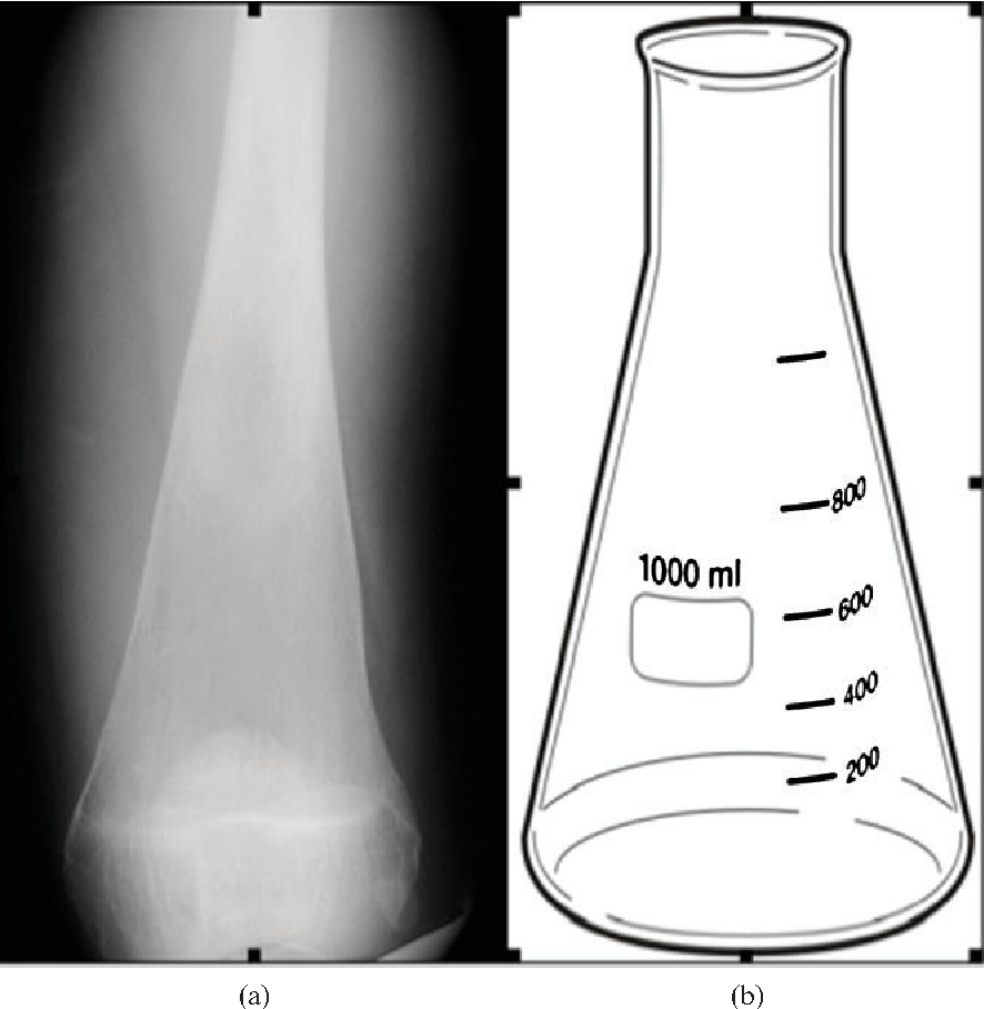 Quantifying the Erlenmeyer flask deformity  - Semantic Scholar