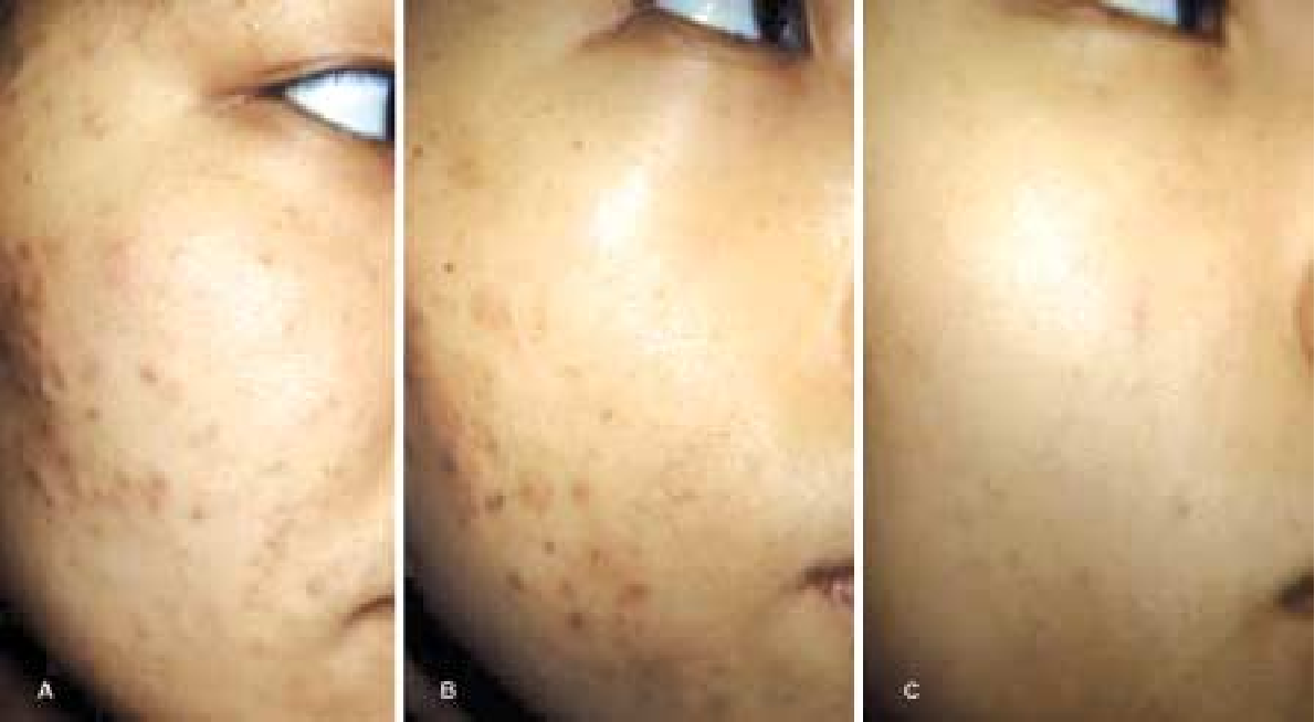 Figure 1 From Salicylic Acid Peel Acne Peel Semantic Scholar