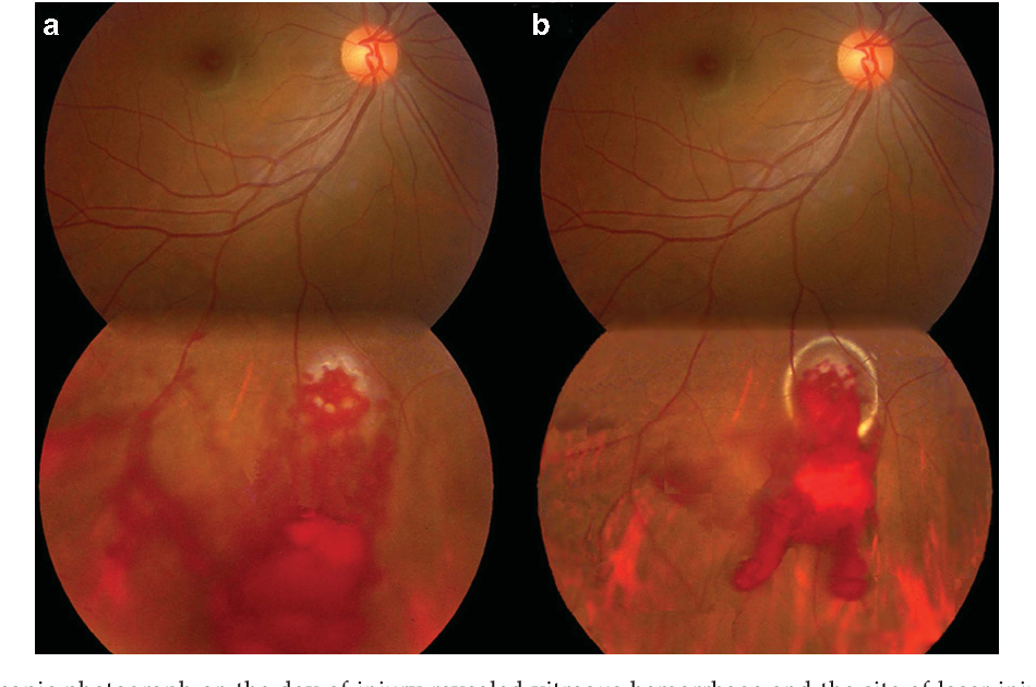 Figure 1 from Multifocal chorioretinitis caused by