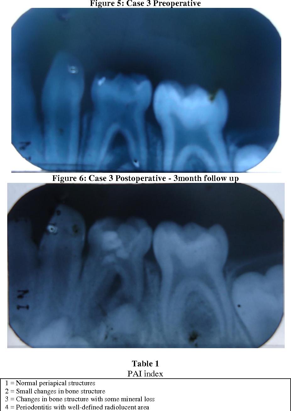 PDF] Lesion Sterilisation and Tissue Repair in Primary Teeth