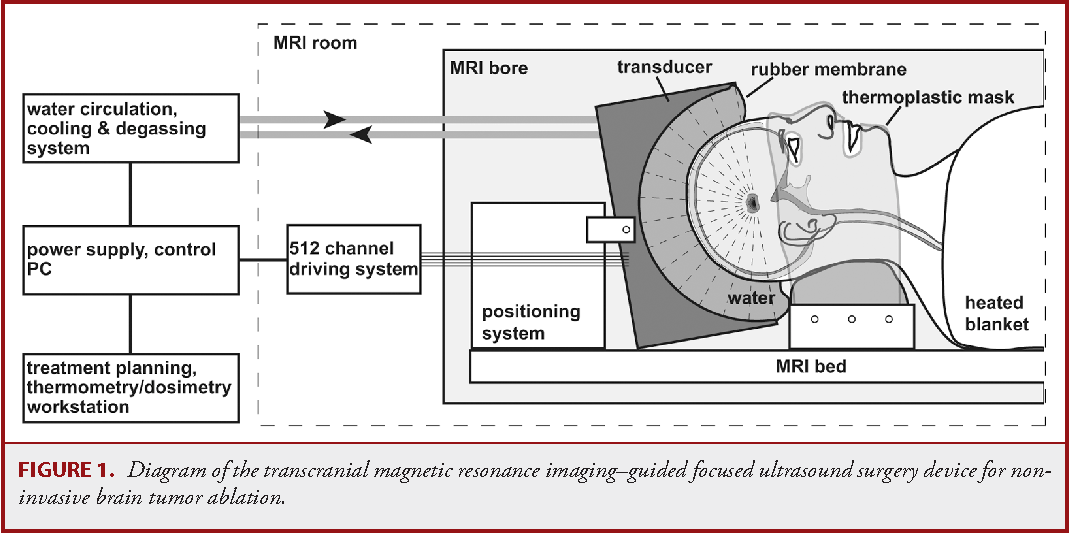 Figure 1 From Transcranial Magnetic Resonance Imaging