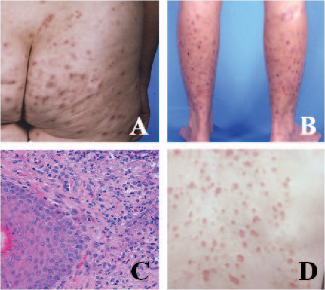 Figure 1 from Skin markers for Hodgkin's disease  - Semantic