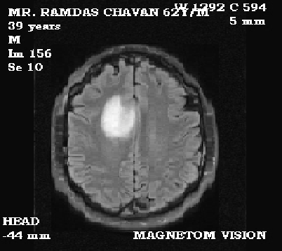 Figure 1 from Brain Tumour Extraction from MRI Images Using