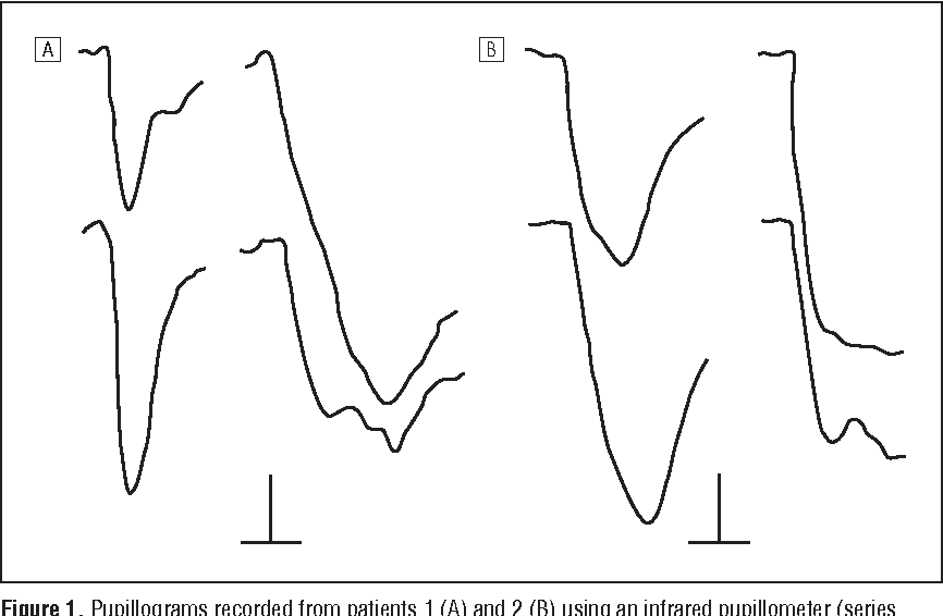 Figure 1 from Unilateral light-near dissociation in lesions