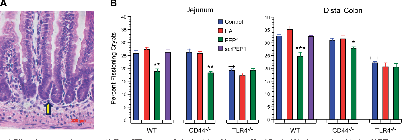Figure 4 from CD 44 and TLR 4 mediate hyaluronic acid