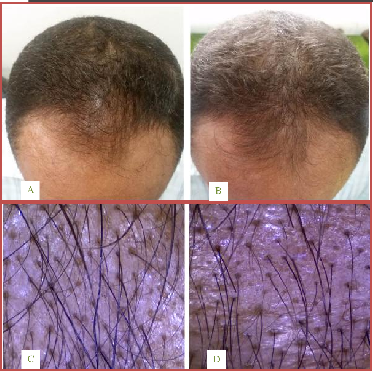 Pdf Topical Dutasteride With Microneedling In Treatment Of Male Androgenetic Alopecia Semantic Scholar