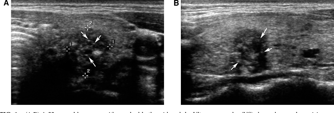 Figure 1 From The Role Of Ultrasound In Thyroid Nodules With A