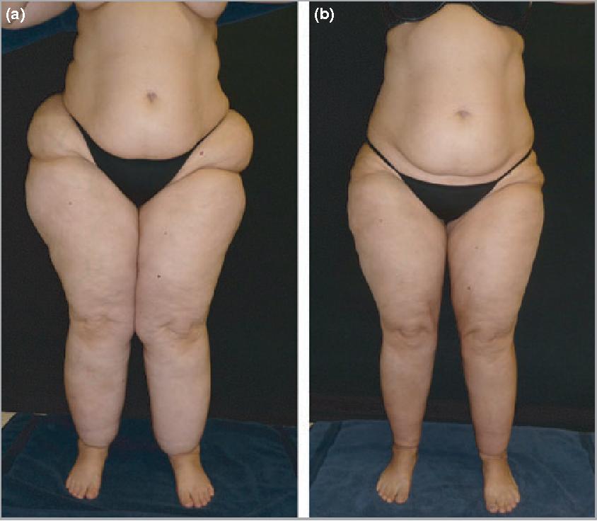 Figure 2 from Tumescent liposuction in lipoedema yields good