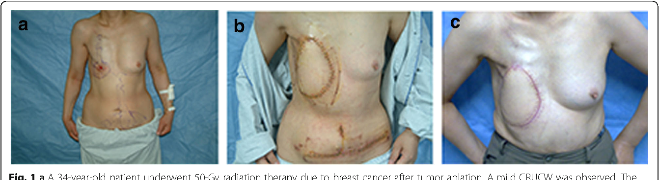 Classification of chronic radiation-induced ulcers in the ...