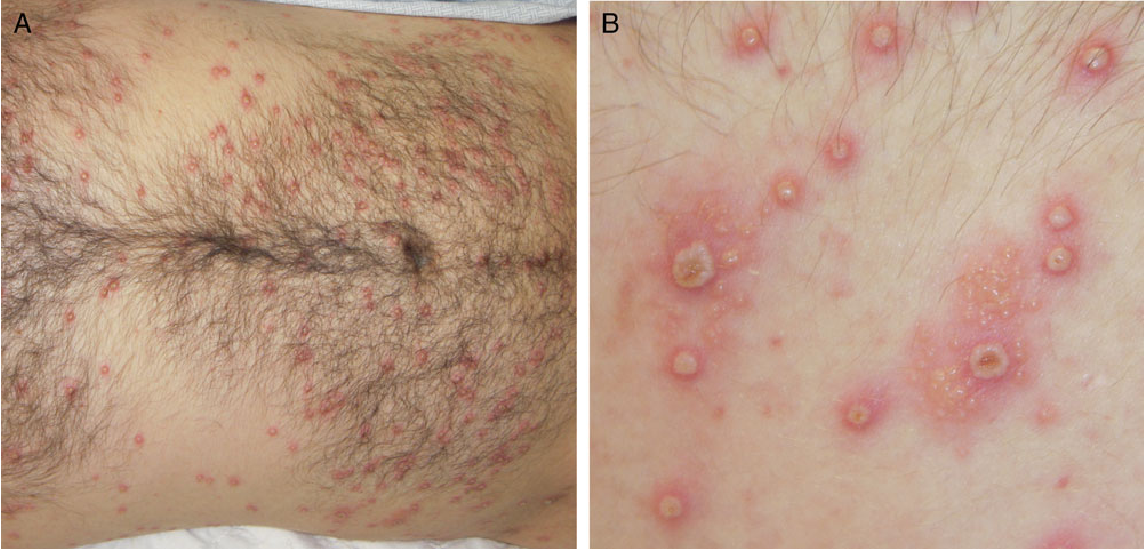 [PDF] Disseminated Primary Herpes Simplex Virus Type 2