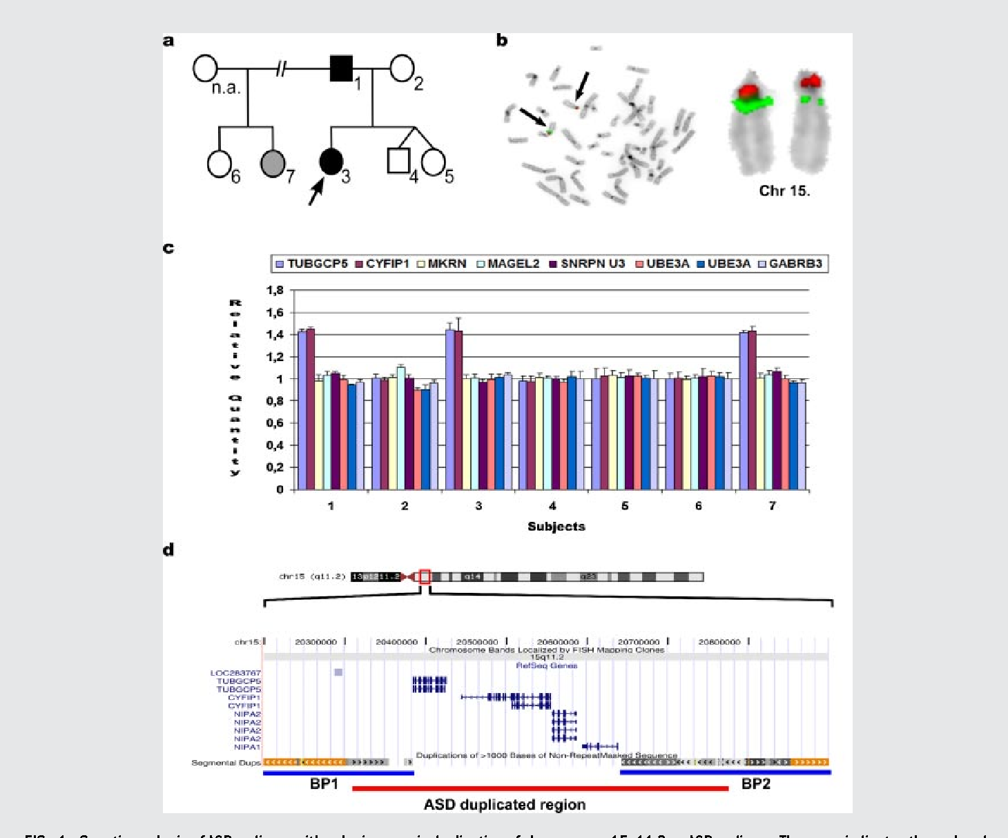 Study Pinpoints Autism Linked Protein >> A Co Segregating Microduplication Of Chromosome 15q11 2