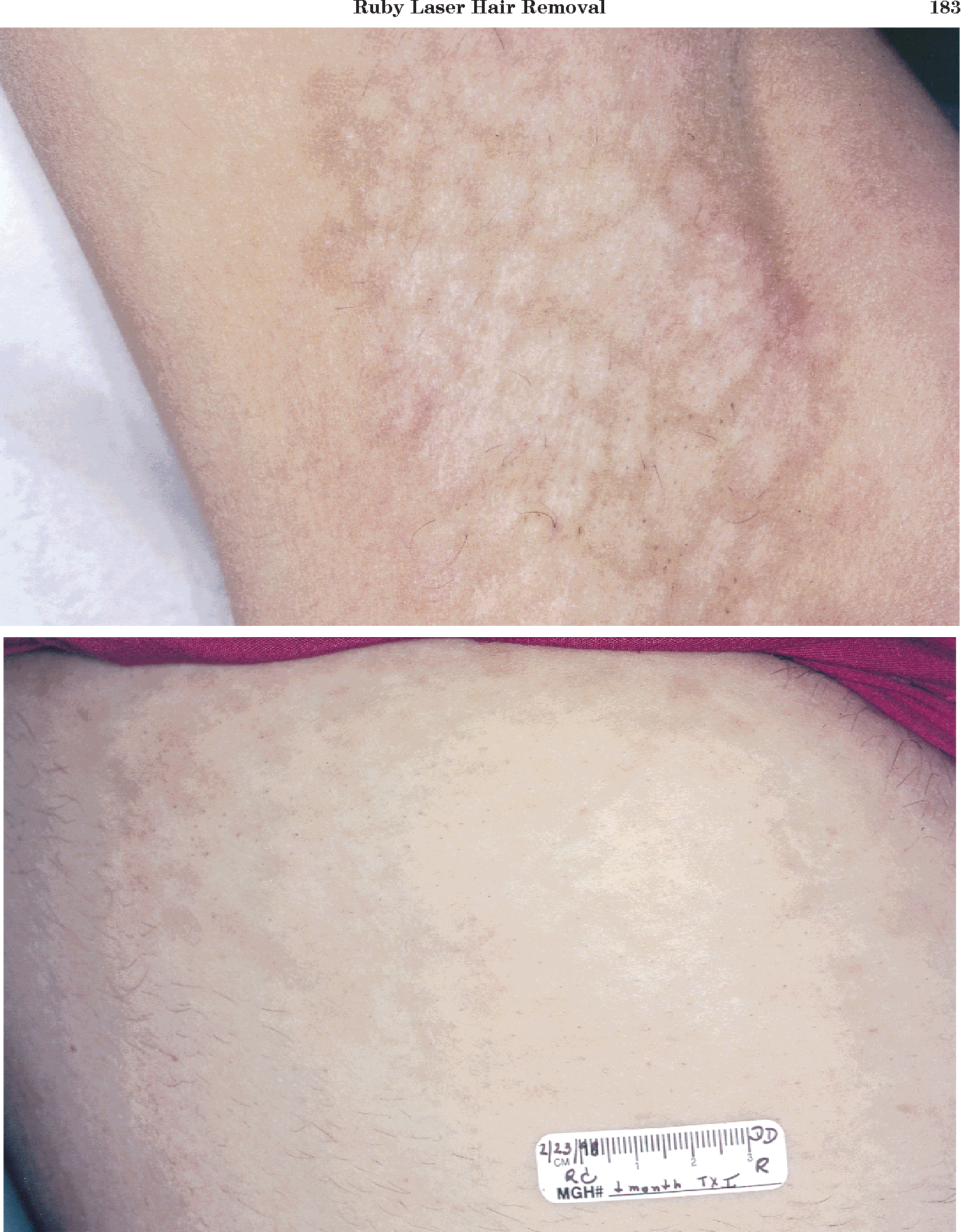 Figure 5 From Ruby Laser Hair Removal Evaluation Of Long Term