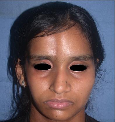 Figure 1 from A New Minimally Invasive Aesthetic Procedure