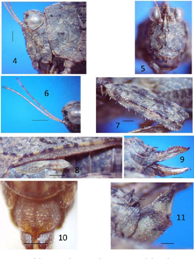 figure 4–11