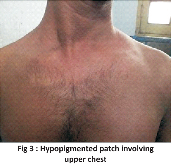 Figure 3 from Non pitting edema, arthritis and ichthyosis