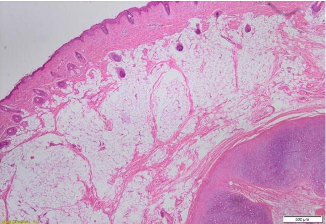 PDF] Bilateral cervical accessory tragus: a rare pediatric