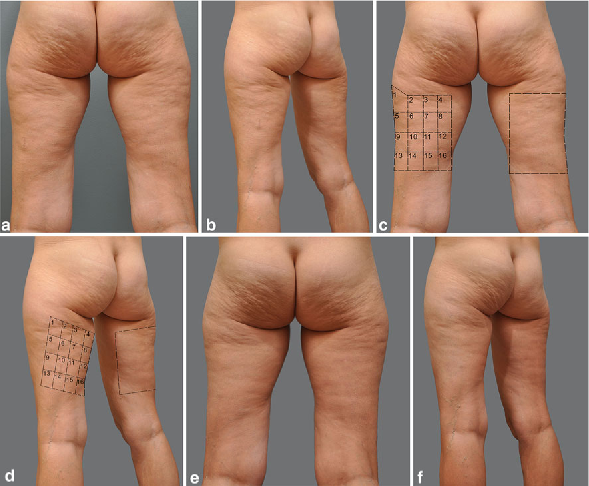 Figure 10 From Single Treatment Of Grades Ii And Iii Cellulite Using A Minimally Invasive 1 440 Nm Pulsed Nd Yag Laser And Side Firing Fiber An Institutional Review Board Approved Study With A 24 Month Follow Up Period