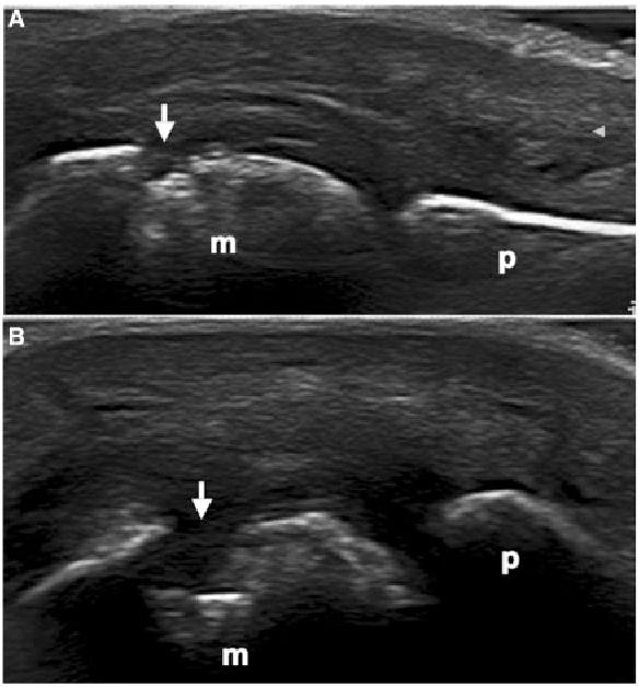Figure 1 From Bone Erosions In Rheumatoid Arthritis Ultrasound Findings In The Early Stage Of The Disease Semantic Scholar