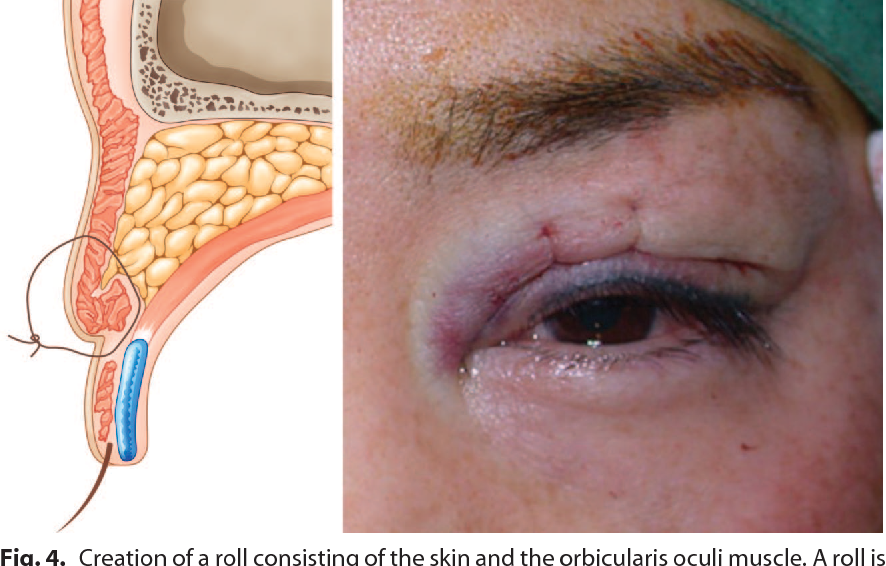 Figure 4 from Surgical correction of multiple upper eyelid