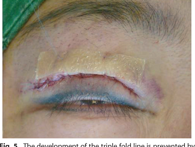 Figure 5 from Surgical correction of multiple upper eyelid