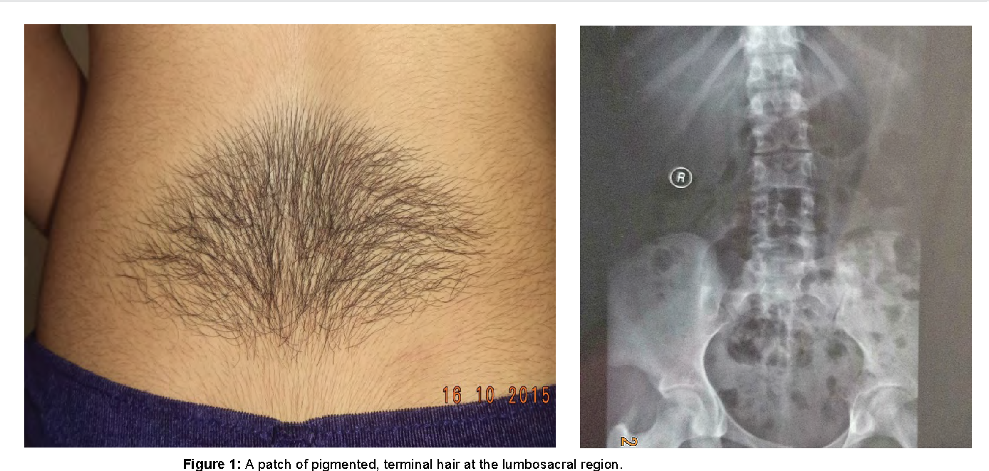 Figure 1 from Nevoid Hypertrichosis Associated with Spina