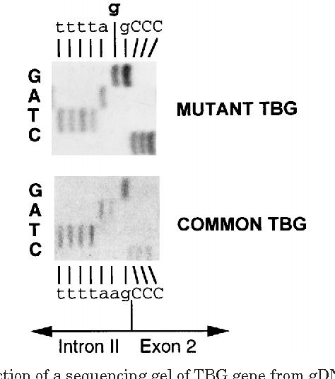 Figure 4 From Complete Thyroxine Binding Globulin Tbg Deficiency