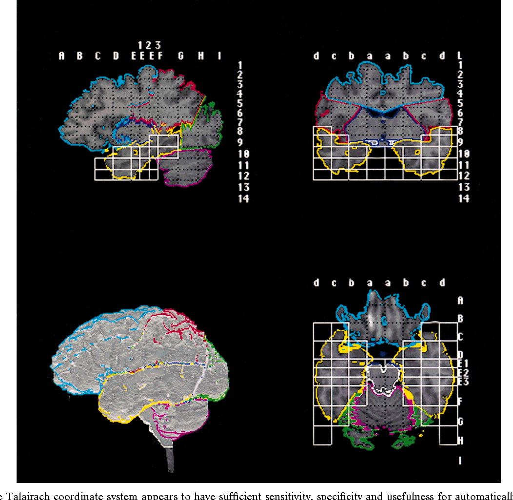 A Brain System That Appears To >> Figure 1 From Automated Talairach Atlas Based Parcellation