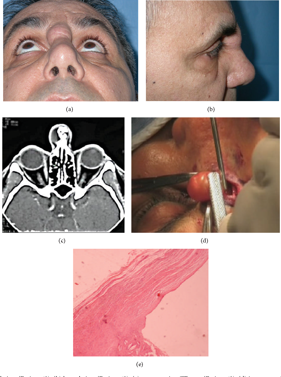 Figure 1 from Unusual Postrhinoplasty Complication: Nasal