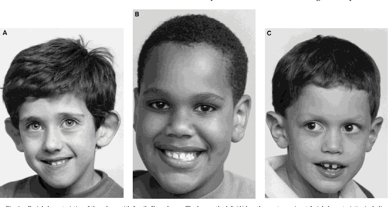 Figure 1 from Physical characteristics of young boys with ...