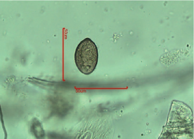 Figure 5 from Endoparasites of pet reptiles based on