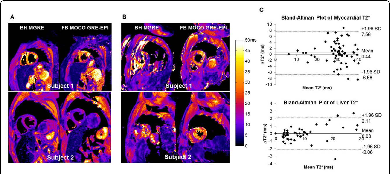 Figure 1 from Free-breathing myocardial T2* mapping using
