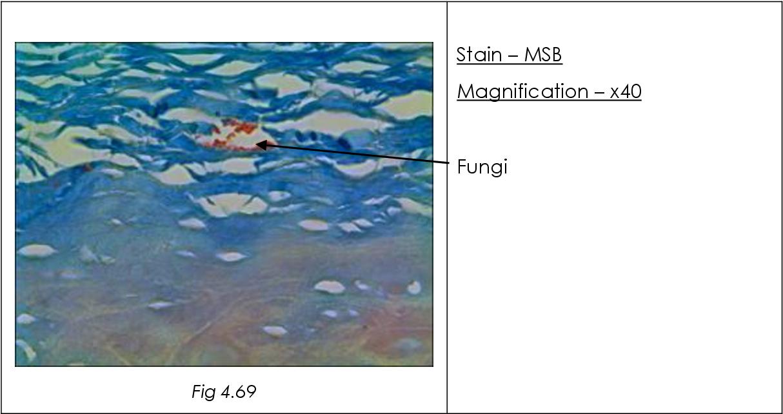 figure 4.69