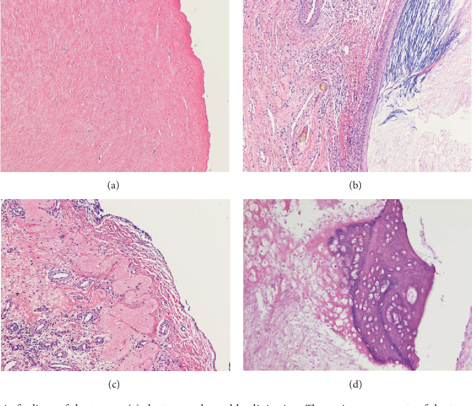 Figure 2 from Mature Cystic Teratoma in Douglas' Pouch ...