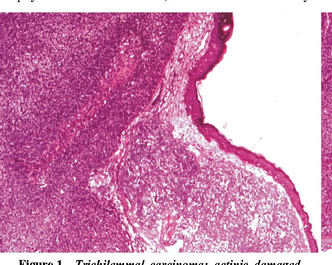 PDF] Trichilemmal carcinoma - a rare cutaneous malignancy