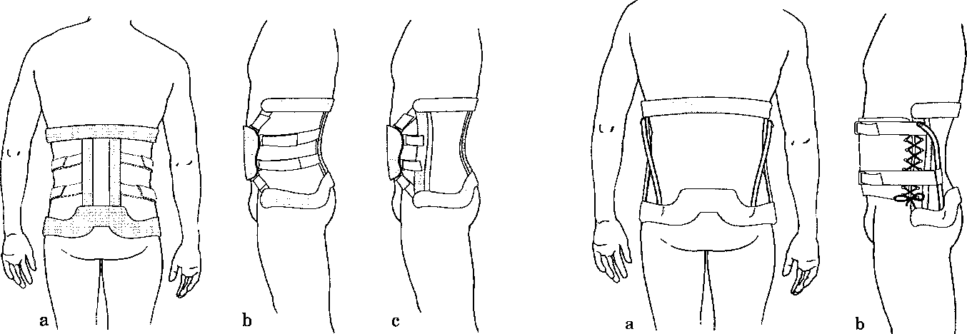 Figure 4 from Introduction: lumbar spinal orthotics