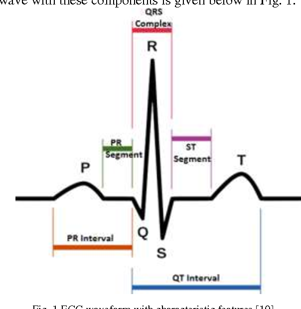 PDF] ECG Signal Denoising with Savitzky-Golay Filter and