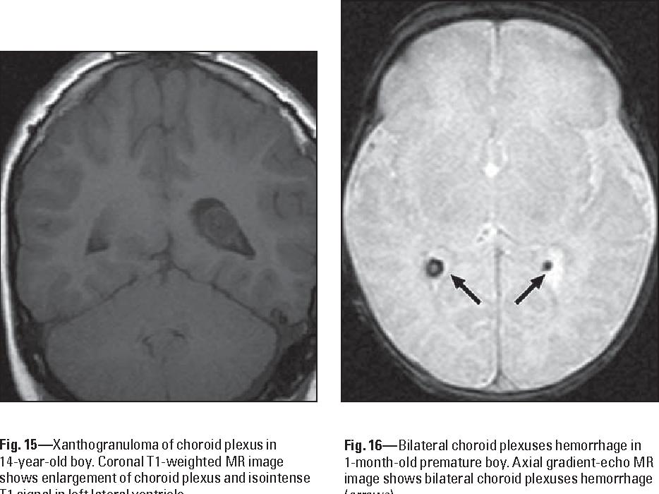 Figure 16 from Spectrum of choroid plexus lesions in ...