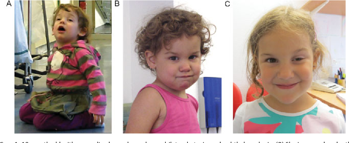 PDF] Juvenile myasthenia gravis: recommendations for
