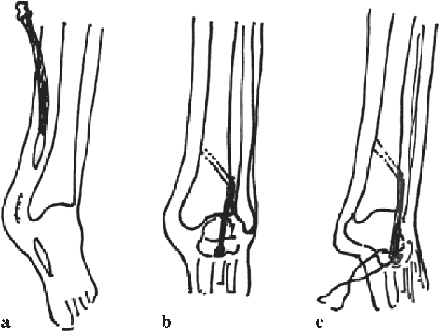Figure 4 From Anterior Transfer Of Tibialis Posterior Tendon For