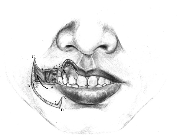 Figure 2 from Yu's flap for lower lip and reverse Yu's flap