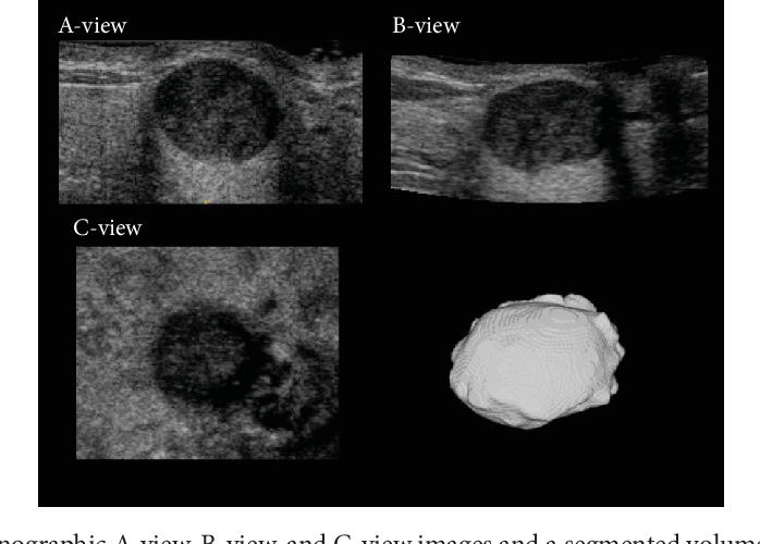 Figure 1 From Computer Aided Assessment Of Tumor Grade For Breast