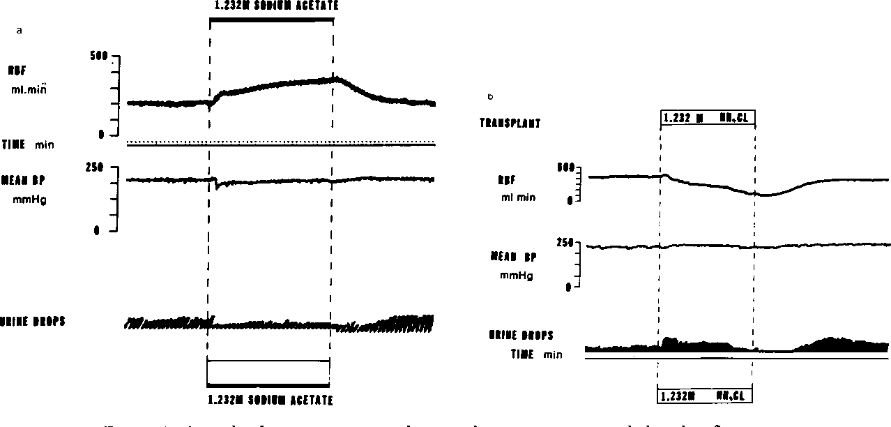 Figure 3 From Regulation Of Renal Blood Flow By Plasma
