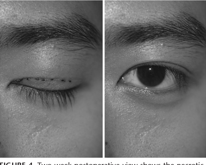 Tissue thread grafting: nonincisional double-eyelid