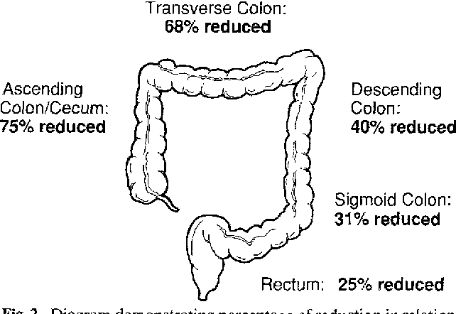 Figure 2 from Intussusception: clinical and radiographic factors  influencing reducibility | Semantic ScholarSemantic Scholar