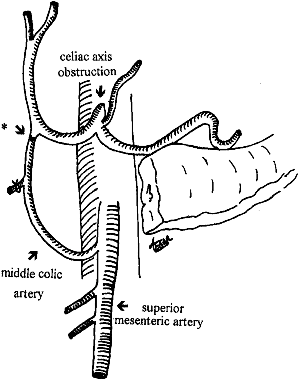 FIGURE 2 The middle colic artery is end-to-end anastomosed to the stump of gastroduodenal artery (*).