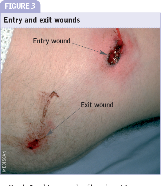 PDF Emergency care of patients with gunshot wounds ...