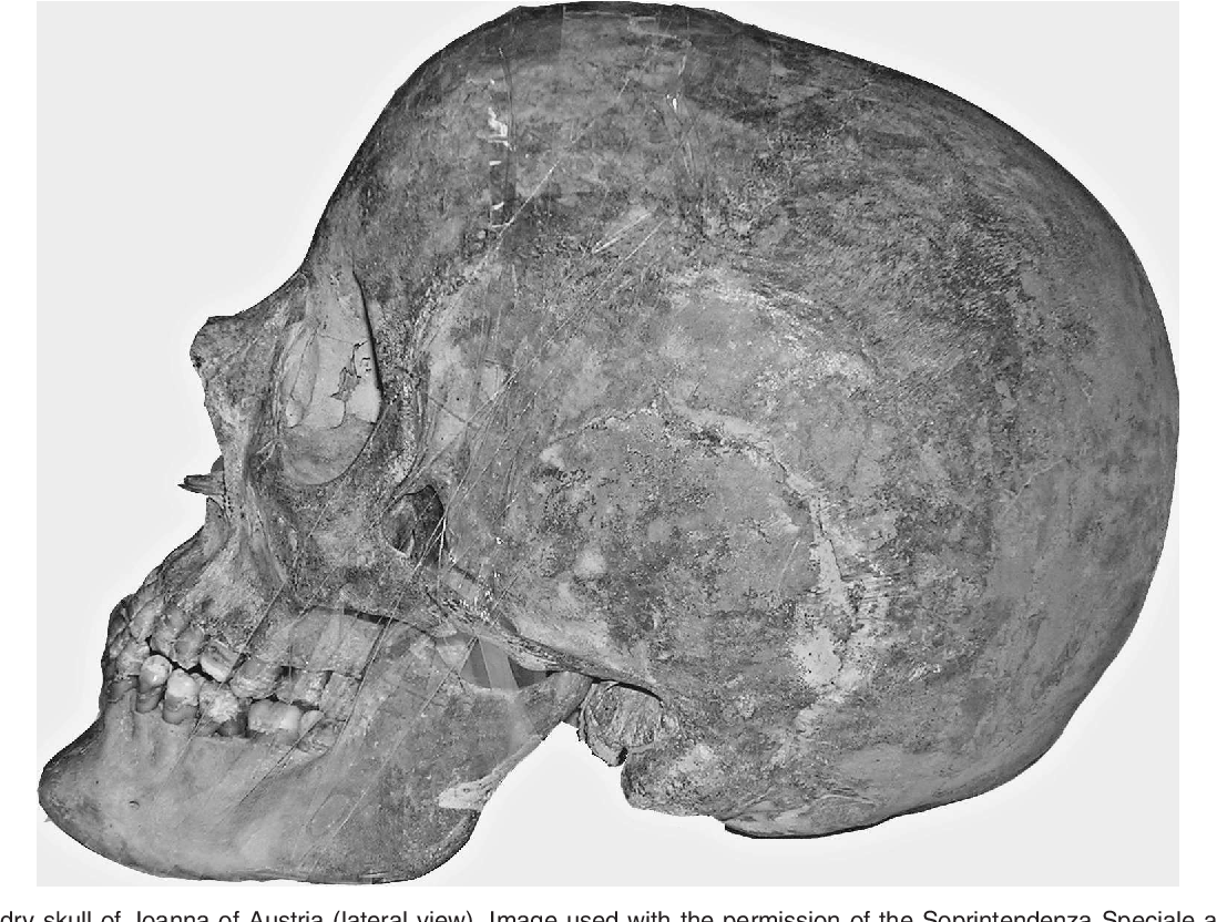 Figure 2 From Retrognathic Maxilla In Habsburg Jaw Skeletofacial Analysis Of Joanna Of Austria 1547 1578 Semantic Scholar